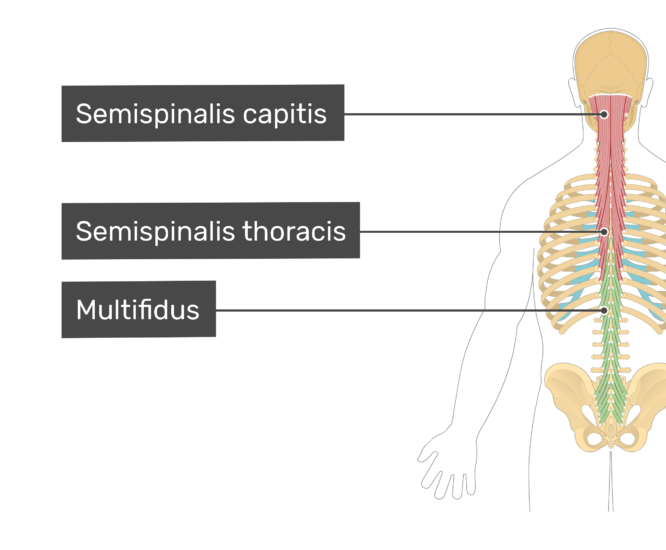 Labelled image of the semispinalis capitis, semispinalis thoracis, and multifidus muscles