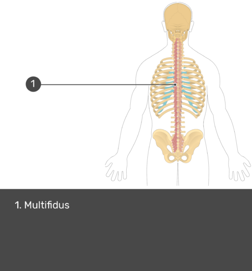 Test yourself image showing answers: multifidus