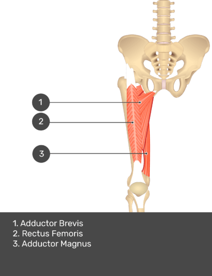 A quiz image of the anterior view of the thigh, pelvis and lower section of the vertebral column. The muscles of the anterior thigh are numbered 1 to 3. The answers revealed at the bottom are as follows 1. Adductor Brevis 2. Rectus Femoris 3. Adductor Magnus.