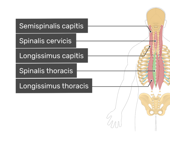 Labelled image of the semispinalis capitis, spinalis cervicis, longissimus capitis, spinalis thoracis, and longissimus thoracis muscles