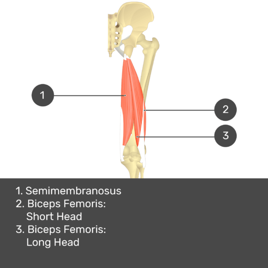 Test yourself image 12, posterior view of thigh and gluteal region. Muscles and structures labelled- semimembranosus, biceps femoris: short head, biceps femoris: long head.