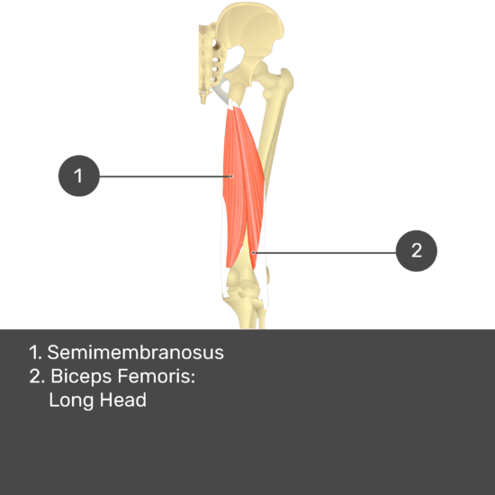 Test yourself image 13, posterior view of thigh and gluteal region. Muscles and structures labelled- semimembranosus, biceps femoris: long head.