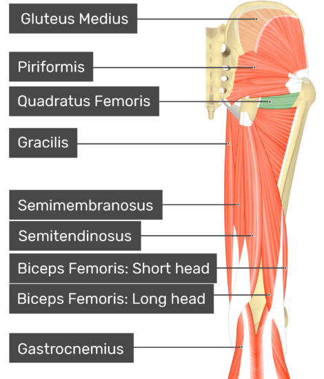 Posterior view of the thigh and gluteal region with quadratus femoris highlighted. Labelled muscles: gluteus medius, piriformis, quadratus femoris, gracilis, semimembranosus, semitendinosus, biceps femoris: short head, biceps femoris: long head, gastrocnemius.