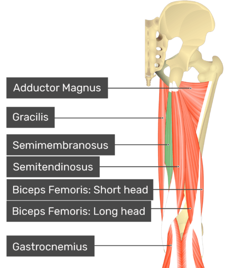 Posterior view of the thigh and gluteal region with semimembranosus highlighted. Labelled muscles: adductor magnus, gracilis, semimembranosus, semitendinosus, biceps femoris: short head, biceps femoris: long head, gastrocnemius.