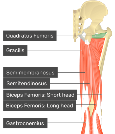 Posterior view of the thigh and gluteal region with gluteus maximus highlighted. Labelled muscles: quadratus femoris, gracilis, semimembranosus, semitendinosus, biceps femoris: short head, biceps femoris: long head, gastrocnemius.
