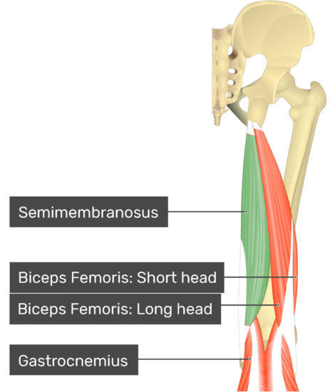 Posterior view of the thigh and gluteal region with semimembranosus highlighted. Labelled muscles: semimembranosus, biceps femoris: short head, biceps femoris: long head, gastrocnemius.