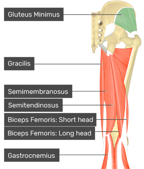 posterior view of the thigh and gluteal region with gluteus minimus highlighted. Labelled muscles: gluteus minimus, gracilis, semimembranosus, semitendinosus, biceps femoris: short head, biceps femoris: long head, gastrocnemius.