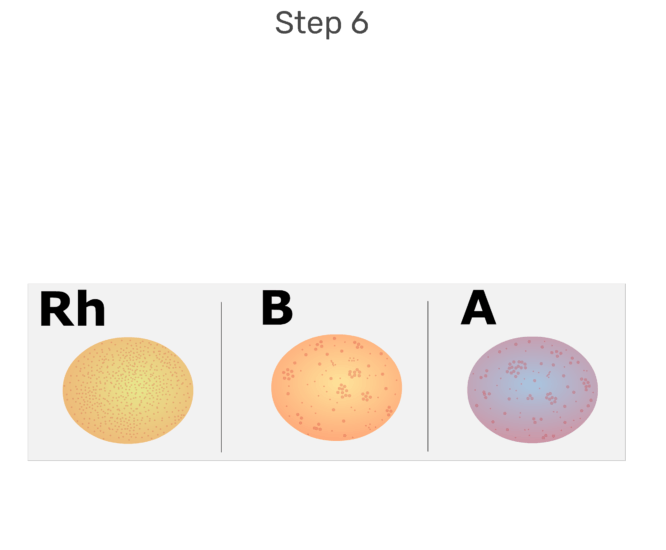 Animation of agglutination occuring indicating whether A, B , or Rh anitgens are present on the RBCs.
