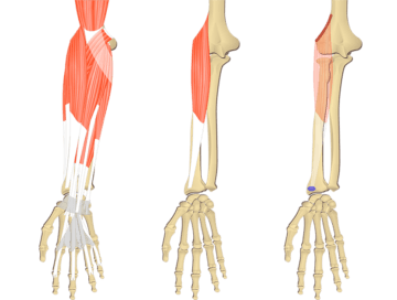 Feature image showing three images of the forearm bony elements and muscles. The image on the left shows all muscles of the forearm, the middle image shows isolated Brachioradialis muscle, and the image on the right illustrates its attachments.