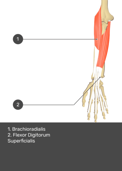 A test yourself image of the anterior view of the forearm showing the bony elements and the deeper muscles. The visible structures of the forearm are numbered 1-2. The answers in the box below are as follows 1. Brachioradialis 2. Flexor Digitorum Superficialis.