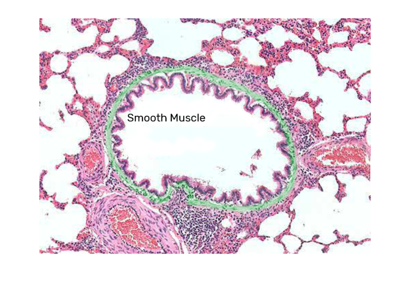 Bronchiole Wall Micrograph labeled smooth muscle