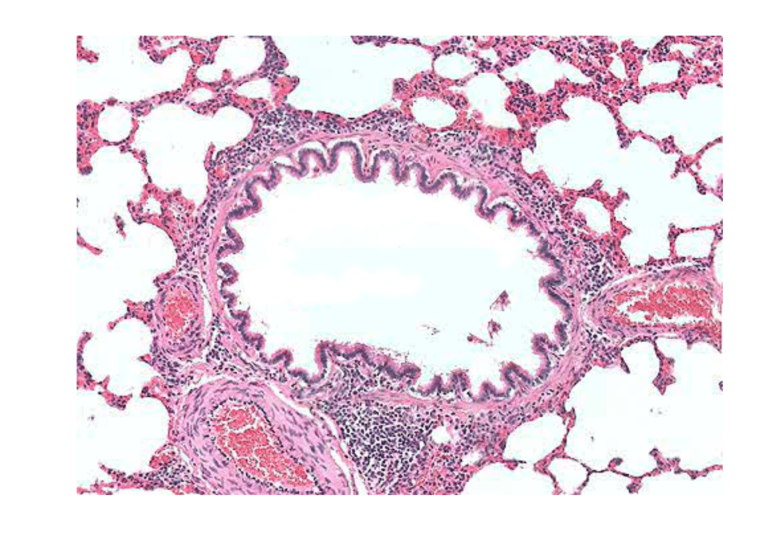 Bronchiole Wall Micrograph