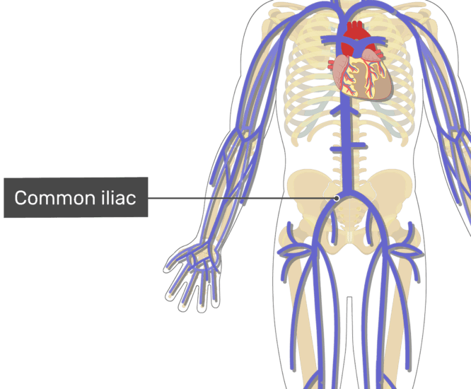 Labelled image of the common iliac vein.