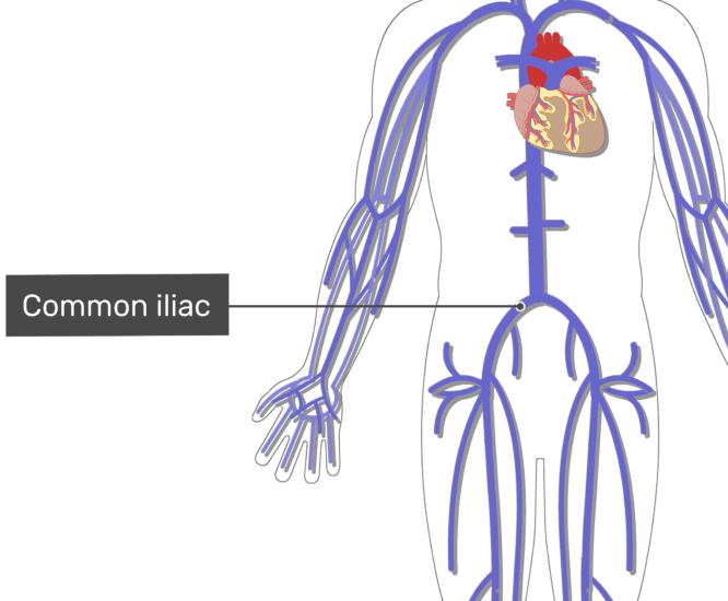 Labelled image of the common iliac vein with the skeleton off.