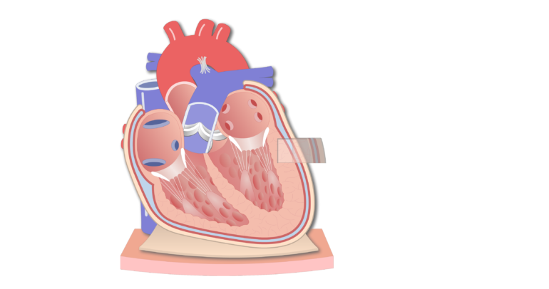 Coronal section of the pericardium animation slide 4