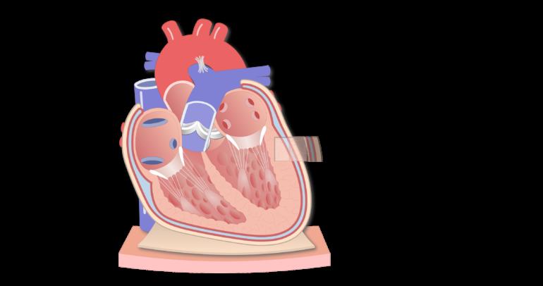 Coronal section of the pericardium animation slide 4