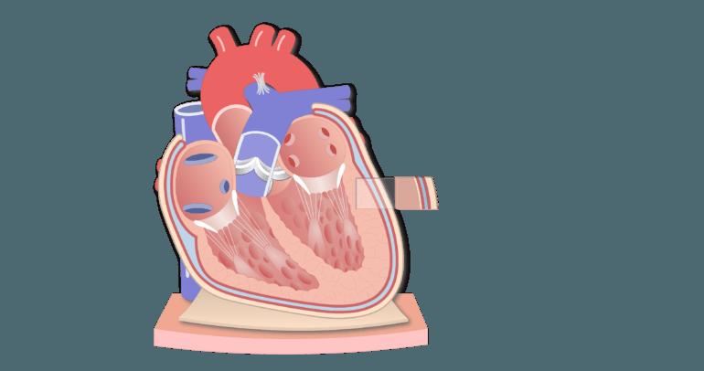 Coronal section of the pericardium animation slide 5