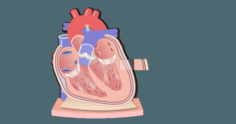 Coronal section of the pericardium animation slide 6