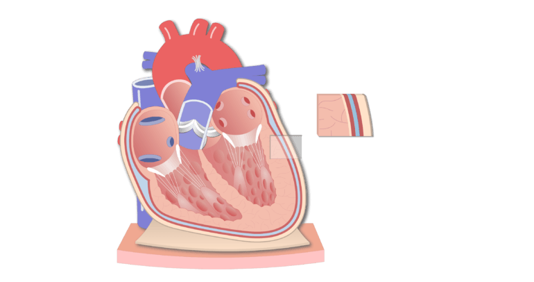 Coronal section of the pericardium animation slide 8