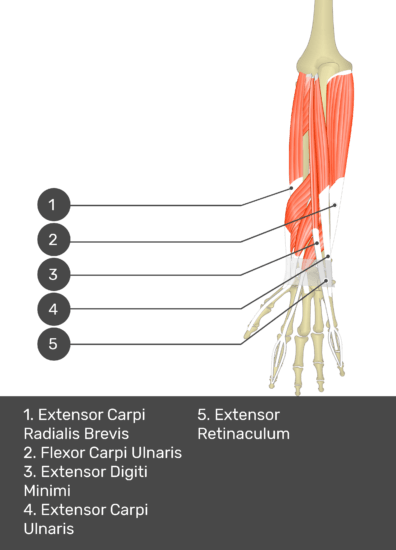 A test yourself image of the dorsal view of the forearm showing the bony elements and the deeper muscles. The visible muscles of the forearm are numbered 1-5. The answers in the box below are as follows 1. Extensor Carpi Radialis Brevis 2. Flexor Carpi Ulnaris 3. Extensor Digiti Minimi 4. Extensor Carpi Ulnaris 5. Extensor Retinaculum.