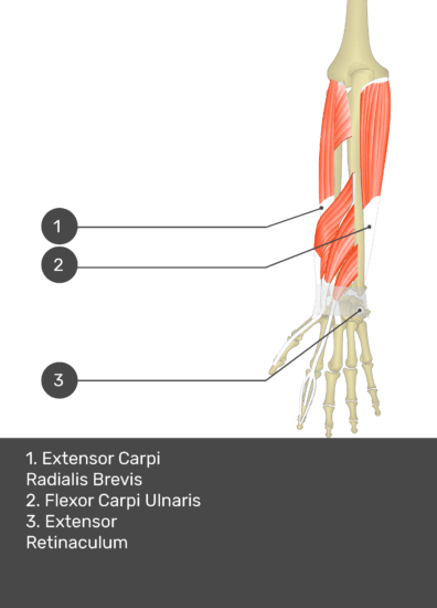A test yourself image of the dorsal view of the forearm showing the bony elements and the deeper muscles. The visible muscles of the forearm are numbered 1-3. The answers in the box below are as follows 1. Extensor Carpi Radialis Brevis 2. Flexor Carpi Ulnaris 3. Extensor Retinaculum.