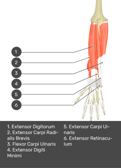 A test yourself image of the dorsal view of the forearm showing the bony elements and the deeper muscles. The visible muscles of the forearm are numbered 1-6. The answers in the box below are as follows 1. Extensor Digitorum 2. Extensor Carpi Radialis Brevis 3. Flexor Carpi Ulnaris 4. Extensor Digiti Minimi 5. Extensor Carpi Ulnaris 6. Extensor Retinaculum.