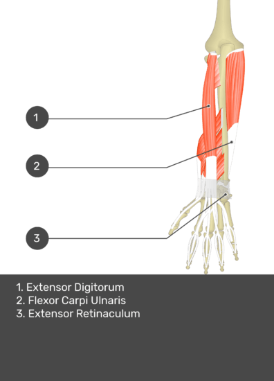 A test yourself image of the dorsal view of the forearm showing the bony elements and the deeper muscles. The visible muscles of the forearm are numbered 1-3. The answers in the box below are as follows 1. Extensor Digitorum 2. Flexor Carpi Ulnaris 3. Extensor Retinaculum.