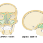 Featured Image Paranasal Sinuses on Coronal and Sagittal View