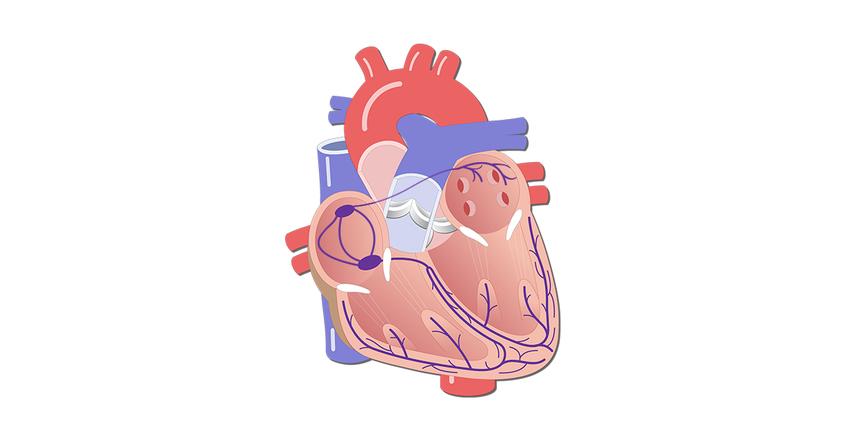 The Electrical Conduction System of the Heart: