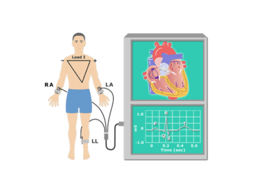 Featured image for the electrocardiogram test.