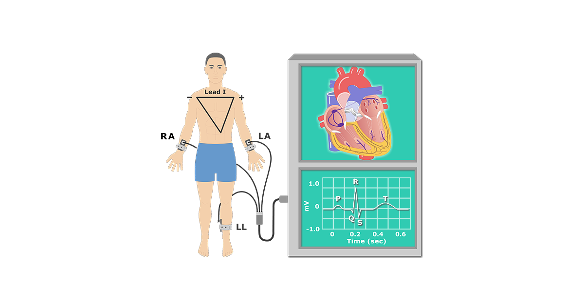 The Electrocardiogram (EKG or ECG)