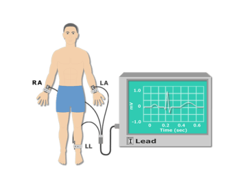 Featured image for the placement of ECG electrodes