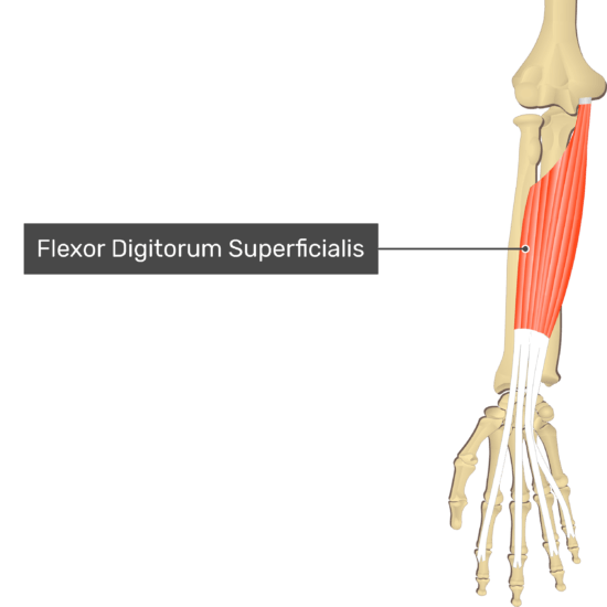An anterior view of the forearm showing the bony elements and isolated Flexor Digitorum Superficialis muscle.