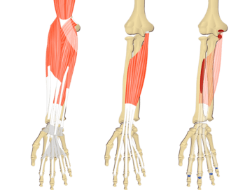Featured image showing three images of the anterior forearm. The image on the left shows the bony elements and the muscles of the anterior forearm, the middle image shows the bony elements and isolated Flexor Digitorum Superficialis muscle, and the image on the right shows the attachments of the Flexor Digitorum Superficialis muscle connected by a transparent muscle itself.