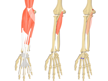 Featured image showing three images of the anterior forearm. The image on the left shows the bony elements and the muscles of the anterior forearm, the middle image shows the bony elements and isolated Flexor Carpi Radialis muscle, and the image on the right shows the attachments of the Flexor Carpi Radialis muscle connected by a transparent muscle itself.