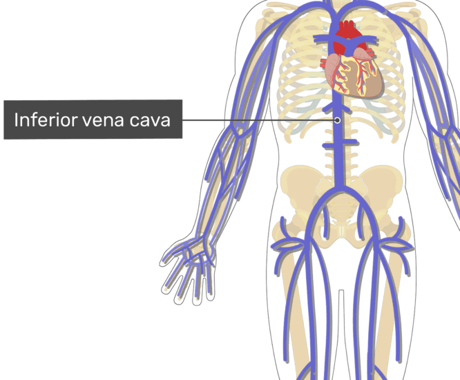Labelled image of the inferior vena cava.