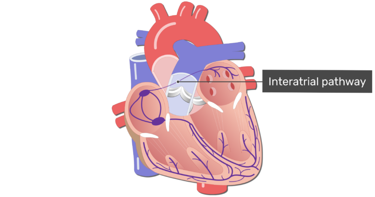 The interatrial pathway of the electrical conduction system.