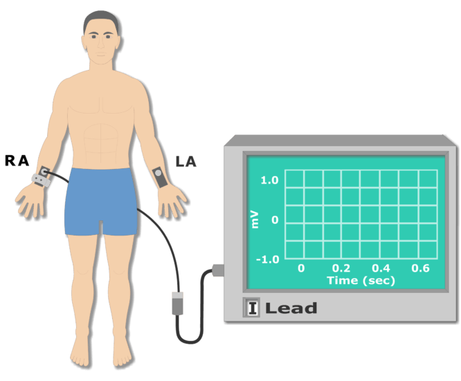 Left arm electrode placement animation slide 1