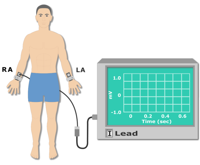Left arm electrode placement animation slide 3