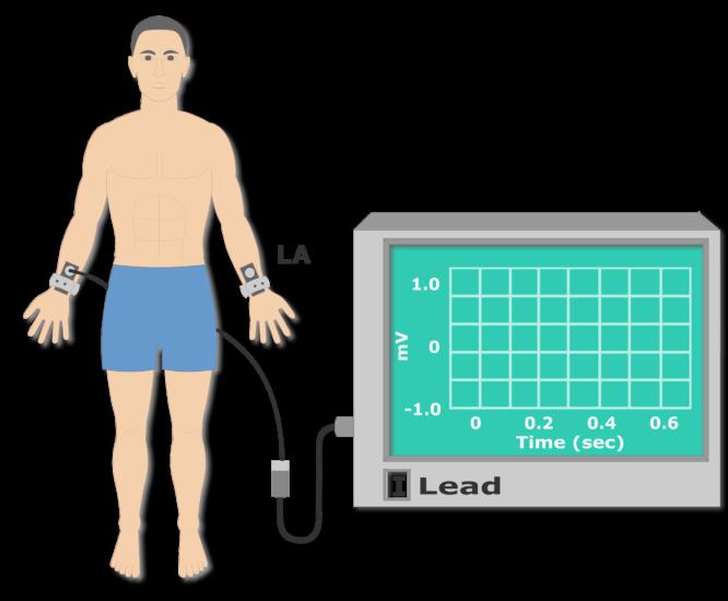 Left arm electrode placement animation slide 4