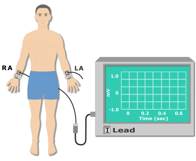 Left arm electrode placement animation slide 5