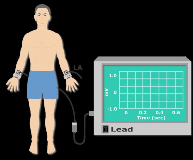 Left arm electrode placement animation slide 5