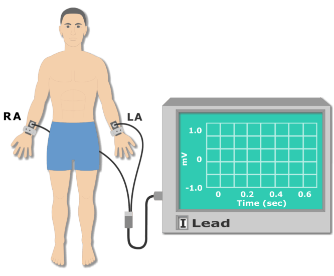 Left leg electrode placement animation slide 1