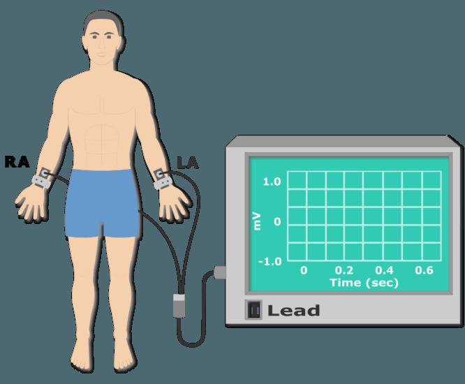 Left leg electrode placement animation slide 1