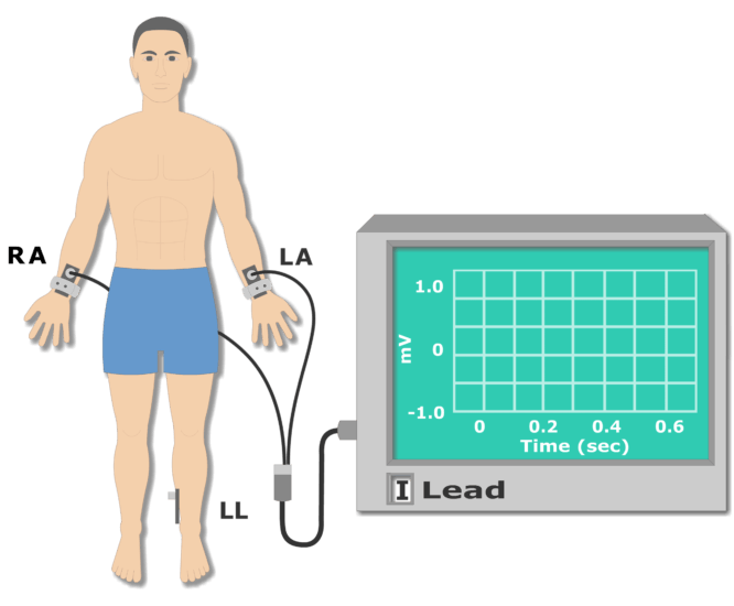 Left leg electrode placement animation slide 2