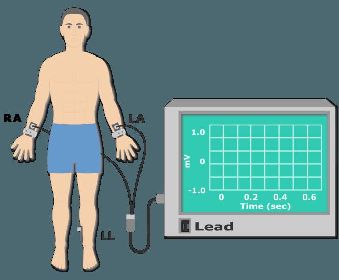 Left leg electrode placement animation slide 2