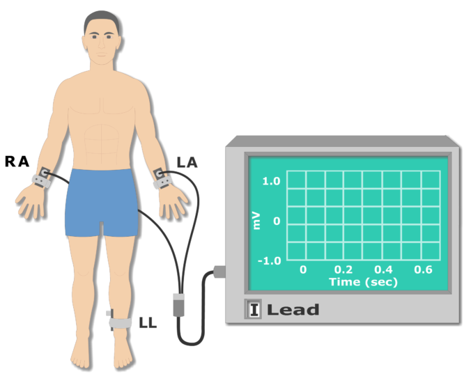 Left leg electrode placement animation slide 3
