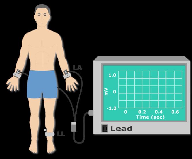 Left leg electrode placement animation slide 3