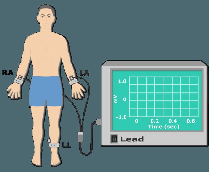 Left leg electrode placement animation slide 5