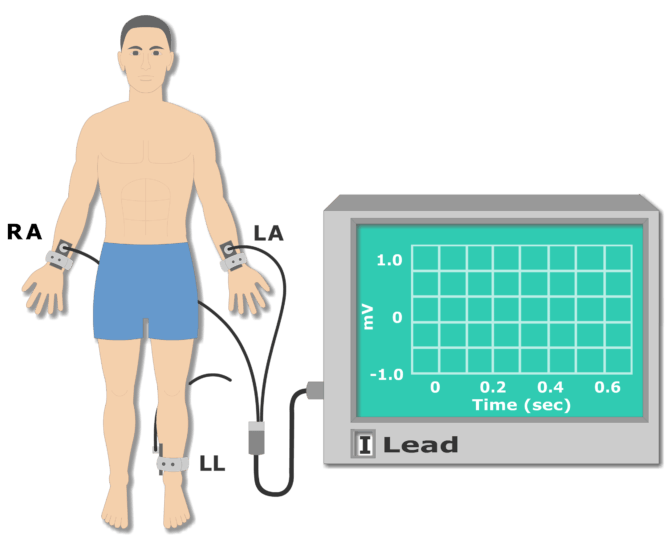 Left leg electrode placement animation slide 7